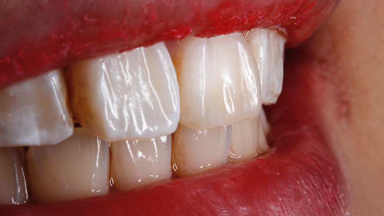 Composite artistry in everyday clinical practice… with BioSmart restoratives
