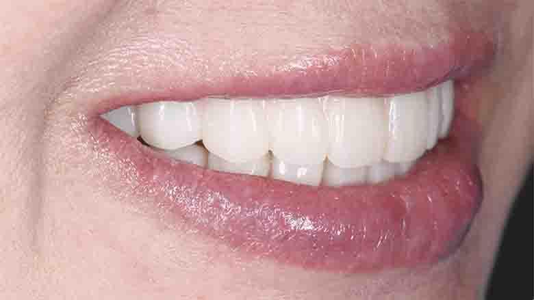 Customised aesthetics for provisional profile prosthesis with ceramage gum