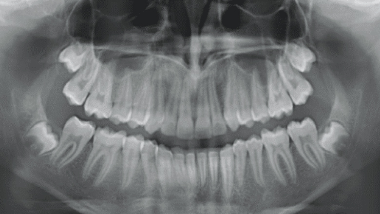 Treatment of Class II division 1 malocclusion treatment with mandibular advancement features