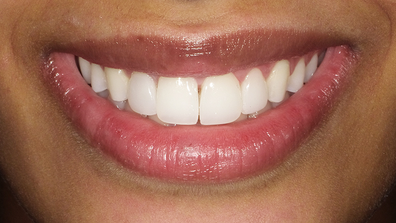 Meeting patients' needs and transforming smiles with direct veneers