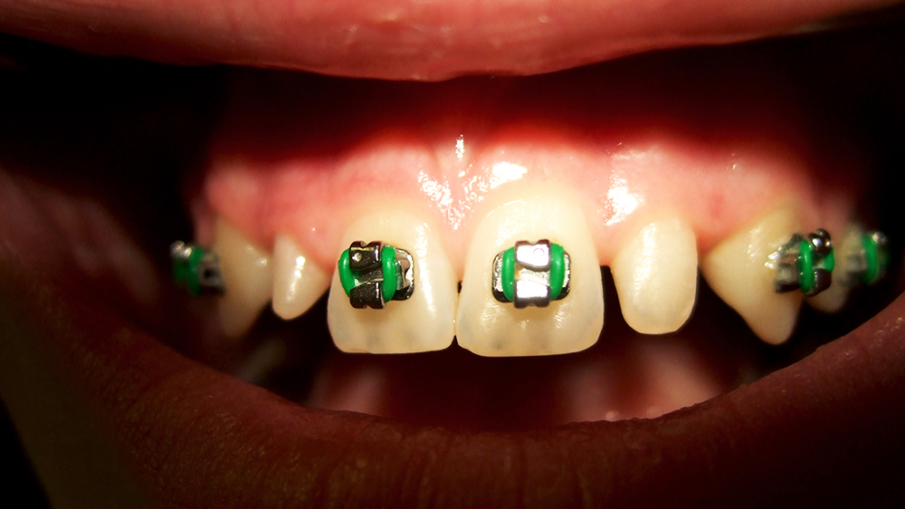 Direct composite restorations in orthodontic indications